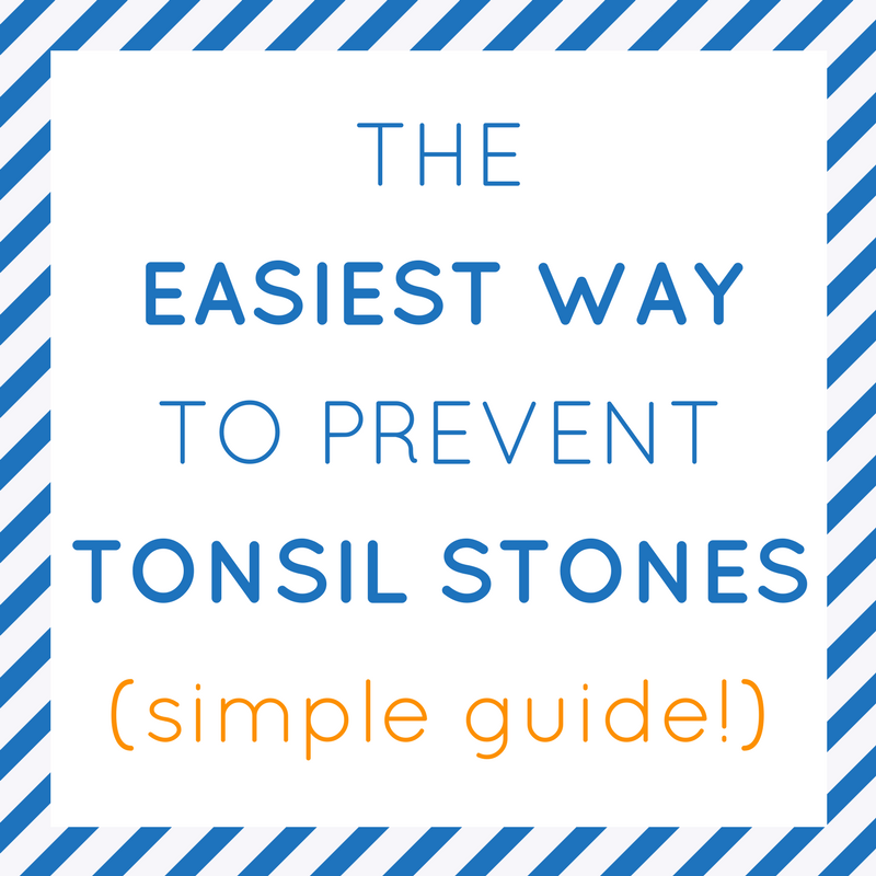 How To Prevent Tonsil Stones Easy Amp Effective